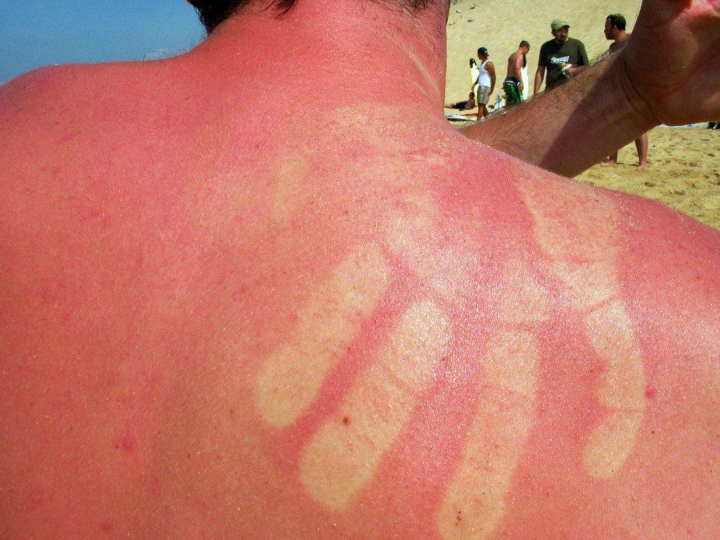 Gesundheitsrisiko UV-Strahlung (Bild: © William Veder  / pixelio.de)