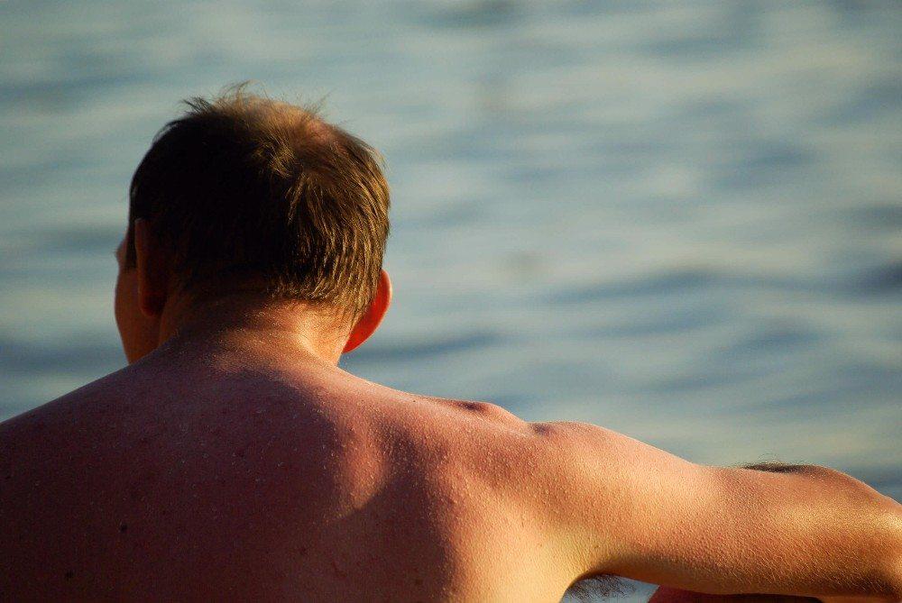 Bei vielen Menschen entstehen durch die Sonnenstrahlen auf der Haut allergieähnliche Hauterscheinungen. (Bild: © lculig - fotolia.com)